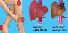 Vücudunuz Önceden Sizi Uyarıyor – İşte Karaciğerinizde Sorun Olduğunu Anlamanın Yolları