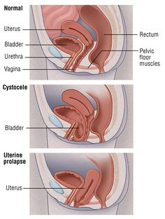Uterine And Bladder Prolapse