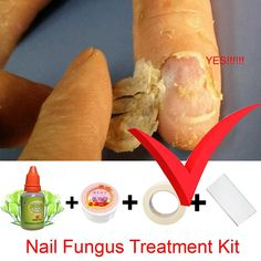 Chinese Medicine Herbs Toe Nail Fungus Treatment Anti Fungal Nail Infection Esse… – If You've Got 10 min a Day Nail Infection Treatment, Fingernail Fungus Treatment, Fungal Nail Infection, Toenail Fungus Treatment, Fungus Toenails, Toe Fungus Cure, Toe Fungus Remedies, Toenail Fungus Medication, Fungi