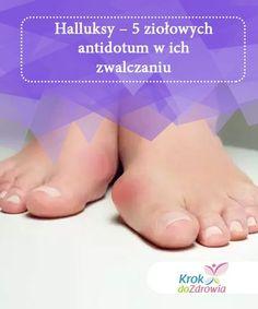 Halluksy - 5 ziołowych antidotum w ich zwalczaniu — Krok do Zdrowia Herbal Remedies, Herbalism, Health, Cooking, Natural Remedies, Herbs, Beauty Tips, Woman, Recipes