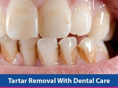 This undesirable, yellow, even brown deposit on the teeth (tartar) can be removed at home! This is a familiar issue for all individuals; modern-day dentistry offers lots of modern methods of its elimination. Today, many people hardly ever consume hard, raw food that requires excellent chewing, but typically eat soft food like oatmeal that doesRead More