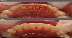Zubní kámen je nažloutlý či nahnědlý a hromadí se na povrchu našich zubů, vblízkosti dásní. Obvykle ho způsobuje několik faktorů a je mezi nimi i špatná ústní hygiena. Vždycky se to musí nějakým způsobem řešit, ovšem my vám ukážeme nějaké přírodní prostředky, kterými je možno zubní kámen odstranit přirozeně a aniž byste museli navštívit tolik …
