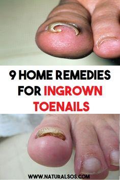 9 Home Remedies for Ingrown Toenails Toenail Pain, Home Remedies, Natural Remedies, Ingrown Toe Nail, Toenails, Pain Relief, Pedicure, Improve Yourself