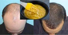 Máscarilla casera extremadamente eficaz para el crecimiento del cabello! | Tips del Dia