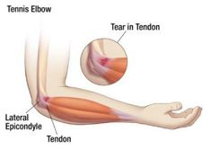"""Tendon problems about the elbow are very common. When tendon problems occur on the outside of the elbow it's called """"Tennis Elbow. Natural Headache Remedies, Natural Cures, Tennis Elbow Relief, Tennis Rules, Tennis Gear, Tennis Tips, Tennis Clothes, How To Play Tennis, Tennis Elbow"""