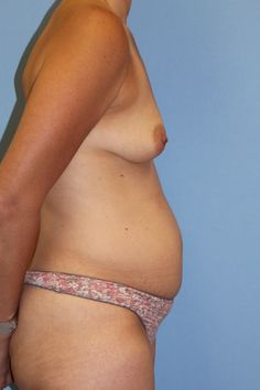 Click to see this mom's flat stomach after her Mommy Makeover!