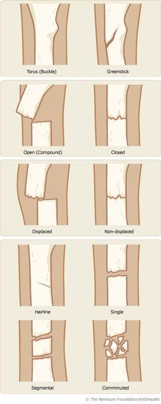 An Easy Guide to the Different Types of Bone Fractures