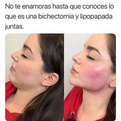 Cheek Fillers, Facial Fillers, Botox Fillers, Dermal Fillers, Acne On Nose, Relleno Facial, Beauty Skin, Hair Beauty, Double Menton