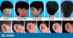 Científicos chinos crean orejas utilizando impresoras 3D