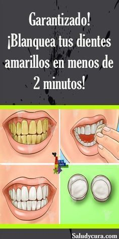 Dental Activities for Kids - Todo Sobre La Salud Bucal 2020 Coconut Oil For Teeth, Dental Health, Oral Health, Teeth Whitening, Beauty Secrets, Beauty Tricks, Beauty Products, Beauty Care, How To Lose Weight Fast