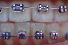 dark and light purple braces