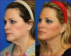 77 Best Double Chin Exercises For Face Firming images in 2018   Face