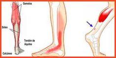 Es una inflamación que ocurre cuando el tendón que conecta la parte posterior de la pierna al talón se inflama y duele cerca de la parte inferior del pie. Este tendón se denomina tendón de Aquiles. Le permite empujar con su pie hacia abajo. Usamos el tendón de aquiles al caminar, correr y saltar. Tu movilidad se va a resentir y el dolor aparecerá a partir de un determinado rango de esfuerzo físico del músculo o tendón. #tendinitis, #tendinitis aquiles, #tendinitis aquilea, #prevencion