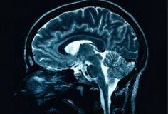 La neuroinflamación como diana terapéutica para el Alzheimer
