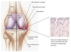 World Congress on Advanced Biomaterials and Tissue Engineering: Stem cell application for Osteoarthritis in the Kn...