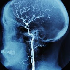 What Is An Epidural Hematoma (Extradural Hematoma) - know your first aid for head injuries.