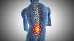://www.truniversity.net/back-pain-other-solutions/ …  Finding a Chiropractor to treat back pain