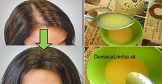 This simple remedy helps your hair growth! This simple remedy helps your hair growth! Beauty Care, Beauty Hacks, Hair Beauty, Beauty Ideas, Hair Loss Causes, Psoriasis Remedies, Hair Loss Remedies, Tips Belleza, Grow Hair