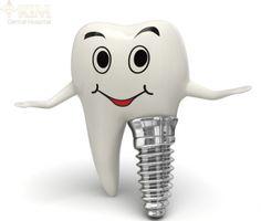 Thời gian làm răng implant mất bao lâu là nhanh nhất?