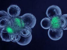 Stem Cell Storage benefits
