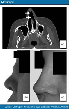 Surgical Interventions and Local Therapy for Wegener's Granulomatosis: Nasal and Paranasal Sinus Disease