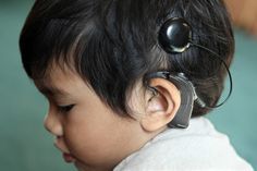 A cochlear implant is a tiny electronic device that the doctor places under the skin and behind the ear. The device picks up sounds, changes them to electrical signals, and sends them past the non-working part of the inner ear and on to the brain.