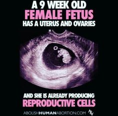 "A nine week old girl has a uterus and ovaries, and is already producing reproductive cells. She has a uterus, yet the ""feminists"" allow her no say in the matter. End Abortion Love Life, Life Is Beautiful, Catholic Bible, Roman Catholic, Respect Life, Life Is Precious, Choose Life, Choose Wisely, Pro Choice"