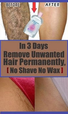 In 4 Days Remove Unwanted Hair Permanently, No Shave No Wax, Removal Facial & Body Hair Permanently ! In 4 Days Remove Unwanted Hair Permanently, No Shave No Wax, Removal Facial & Body Hair Permanently ! Chin Hair Removal, Underarm Hair Removal, Upper Lip Hair Removal, Electrolysis Hair Removal, Hair Removal Diy, Tan Removal, Permanent Facial Hair Removal, Remove Unwanted Facial Hair, Unwanted Hair