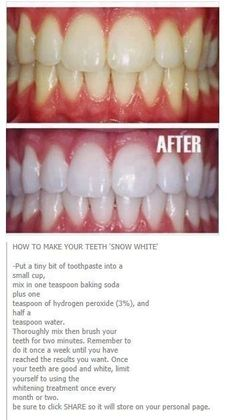 Natural Teeth Whitening Remedies How To Whiten Yellow Teeth and Remove Plague and Tartar Buildup Teeth Whitening Remedies, Natural Teeth Whitening, Homemade Teeth Whitening, Best Whitening Toothpaste, Skin Whitening, Beauty Tips For Glowing Skin, Health And Beauty Tips, Clear Skin Tips, Homemade Skin Care