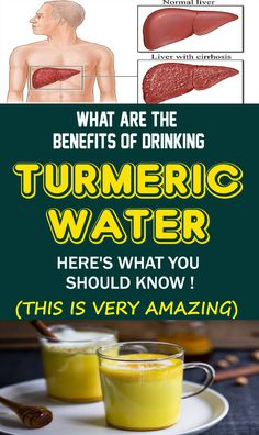 Turmeric is a mind blowing zest beginning from India utilized in the most popular dish, curry. It shows a wide scope of medical advantages because of the intense mitigating, hostile to maturing and against oxidant properties. Natural Home Remedies, Natural Healing, Holistic Healing, Different Types Of Arthritis, Cooking With Turmeric, Turmeric Water, Turmeric Drink, Curry, Home Remedies