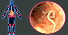 Worm Therapy to Treat Inflammatory Disorders - An old therapy has re-emerged that incorporates the use of helminthes - parasitic worms - to combat autoimmune and inflammatory disorders. http://articles.mercola.com/sites/articles/archive/2017/03/13/helminth-therapy.aspx?utm_source=dnl&utm_medium=email&utm_content=art3&utm_campaign=20170313Z1_UCM&et_cid=DM136370&et_rid=1923717281