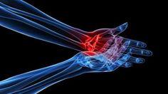 A  lesão medular traz perdas de função nos mais variados órgãos e sistemas que dependem de sua inervação, como a movimentação do tronco e membros, a sensibilidade cutânea e profunda, a sensação de …