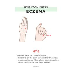 How does Chinese Medicine view Eczema - SkinWellMD Acupressure Therapy, Acupuncture Points Chart, Acupressure Points, Alternative Therapies, Alternative Medicine, Eczema Remedies, Face Massage, Traditional Chinese Medicine, Massage