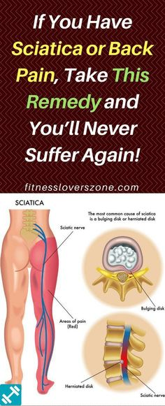 How do you relieve sciatic nerve pain? In this article, you will find the homemade remedy for sciatica and back pain, which effectively soothes these symptoms.