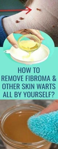 How to Remove Warts Naturally #SkinWartsOnFace #CanWartsBeRemoved #wart How to Remove Warts Naturally #SkinWartsOnFace #CanWartsBeRemoved #EasyWayToRemoveSkinTags #RemoveWarts