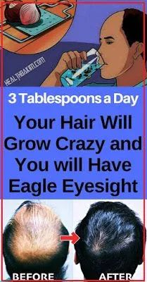 Beauty Discover Three Tablespoons a Daytime, Your Hair Willpower Produce Foolish and You resolve Consume Eagl. three-tablespoons-a-daytime,-your-hair-willpower-produce-foolish-and-you-resolve-consume-eagle-vision, , Beauty Tips And Secrets, Scalp Conditions, Baking Soda Shampoo, Male Pattern Baldness, Hair Loss Remedies, Gout Remedies, Dandruff Remedy, Health Remedies, Hair Regrowth