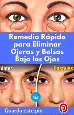las ojeras debajo de los ojos causan nhs