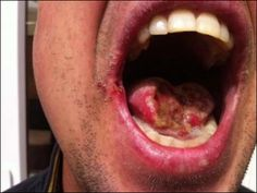 Horrific injury to John Dufton's tongue after it was bitten off by window cleaning boss in a scuffle.