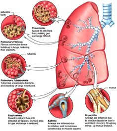 Restrictive Lung Disease | Figure 14.10 Common bronchial and pulmonary diseases. Exposure to ...