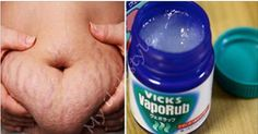 In this article you can read 21 more amazing uses of Vicks you haven't heard about.  1. Puts Off Mosquitoes  If you want to keep mosquitoes away, apply a little bit of Vaseline on your clothing and skin.  2. Sinus Headaches  If you are suffering from sinus headaches, do this trick immediat