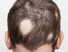 Effective Alopecia Areata Treatments