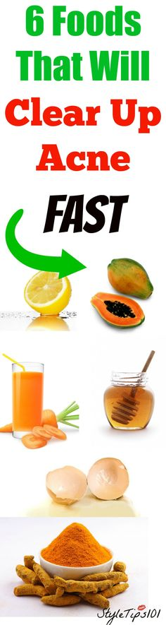 If you suffer from acne prone skin, let us introduce you to 6 foods that will clear up acne in a pinch! Now everyone has different types of acne, some more severe than others, so it's always best to consult with your dermatologist (especially if you have severe acne), before commencing any new regimen. That… Read More »