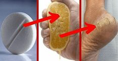 Dermatologists Are Angry In Silence, This Removes The Calluses And Fungi Of The . Dermatologists Are Angry In Silence, This Removes The Calluses And Fungi Of The Feet In 2 Days Health Goals, Health And Wellness, Health Yoga, Healthy Drinks, Healthy Tips, Healthy Skin, Health Remedies, Home Remedies, Aspirin