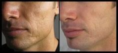 Before/After shots of Luminesce. This product is Jeunesse patented Anti Ageing Stem Cell Serum. For mor info please contact me; www.fa ebook.JeuneVie.JM.