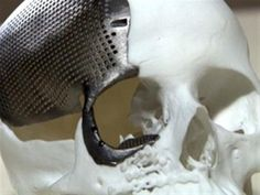3ders.org - Medical first in Brazil: 3D printed titanium skull successfully implanted in 23-year-old woman | 3D Printer News & 3D Printing News