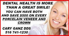 Porcelain Veneers, Great Smiles, Dental Health, Dentistry, Your Smile, Oral Health, Healthy Teeth