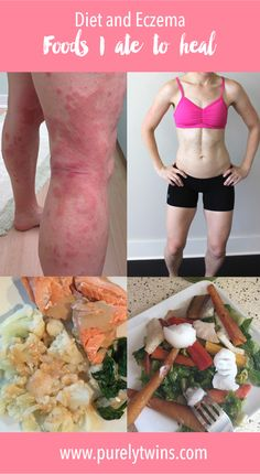 How to heal your eczema through diet. I have been eczema free for one year. I am talking all about diet and eczema. What foods to avoid and what foods to eat to help heal your skin. If I can heal my eczema so can you! Snoring Remedies, Eczema Remedies, Arthritis Remedies, Natural Remedies, Psoriasis Diet, Psoriasis Symptoms, Psoriasis Arthritis, Psoriasis Cream, Plaque Psoriasis