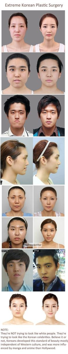 Korean plastic surgery - funny pictures - funny photos - funny images - funny pics - funny quotes - #lol #humor #funny