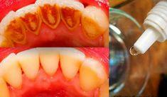 Tato babská metoda odstraní zubní kámen a vybělí zuby přírodní směsí - Peach, Candy, Fish, Ethnic Recipes, Hot, Fitness, Teeth, Weather, Shape