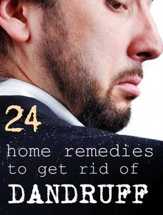 24 Home Remedies to Get Rid of #Dandruff  #naturalremedies #haircare